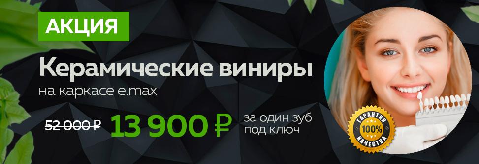 Предложение по установке керамических виниров, стоимость за один зуб 13 900 рублей под ключ в стоматологии Лимон по акции